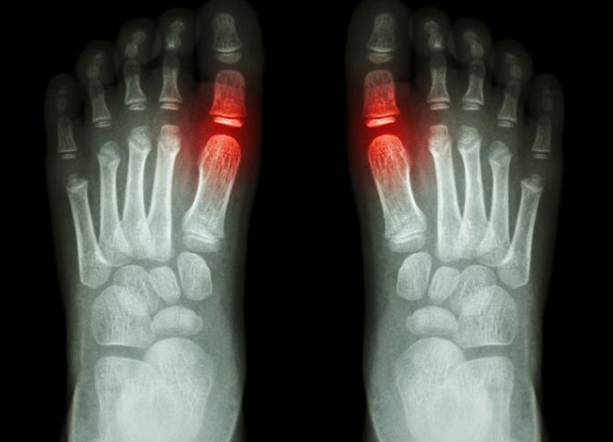 How To Treat Manage And Prevent Gout With Lifestyle