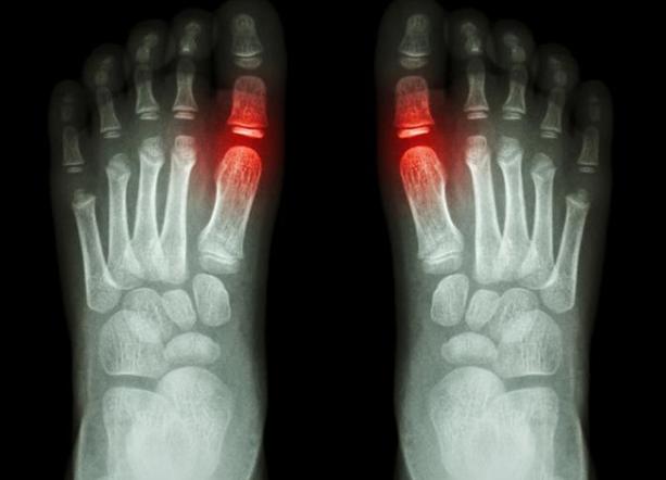 gout-feet
